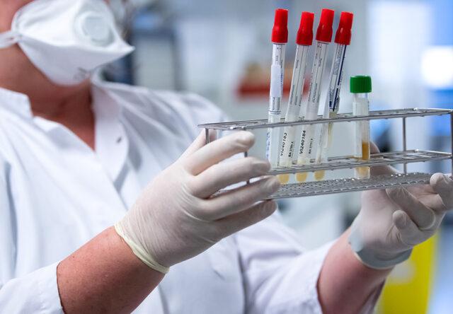 В Запорожской области за сутки COVID-19 подтвердился у 7 пациентов
